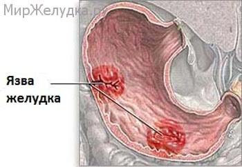 Как выглядит язва желудка?