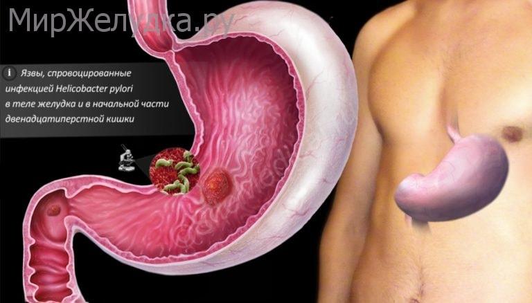 Язва желудка с инфекцией Helicobacter Pylori