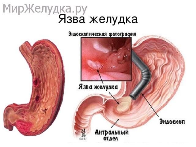 Эндоскопическое фото язвы желудка