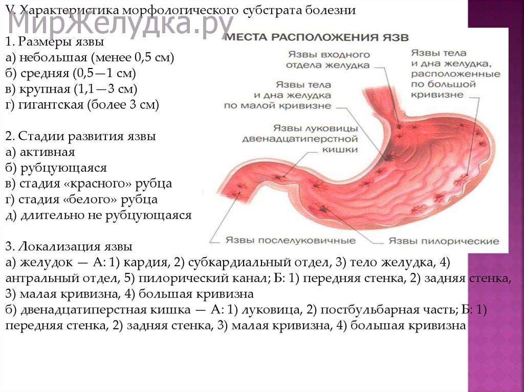 Морфологические характеристики язвы желудка
