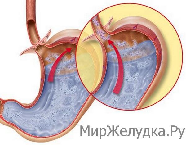 Гастроэзофагеальная рефлюксная болезнь (ГЭРБ) что это