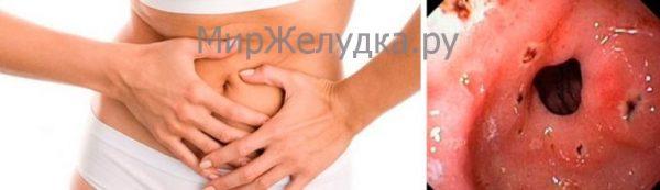 Симптомы эрозии желудка
