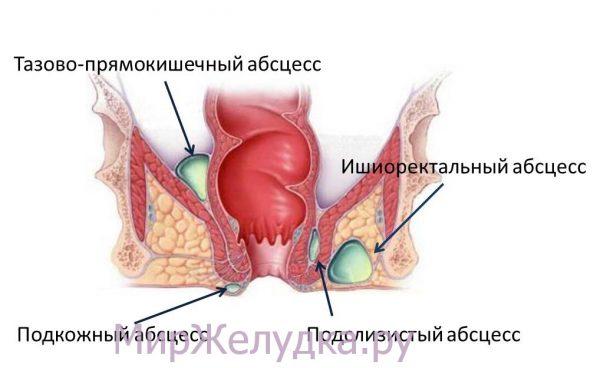 Парапроктит: гнойное воспаление