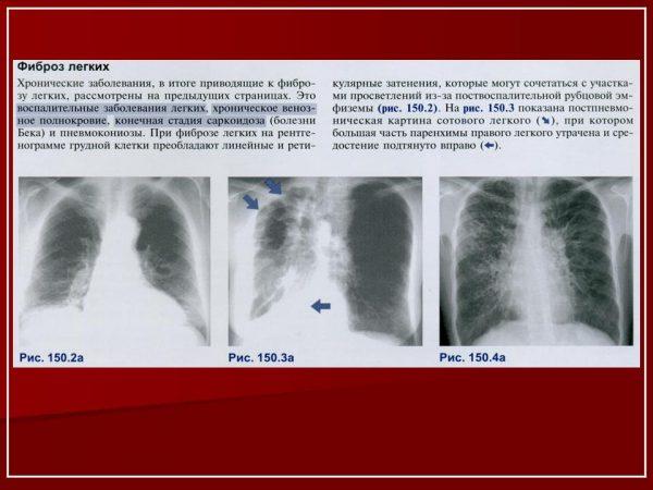 Лечение фиброза лёгких